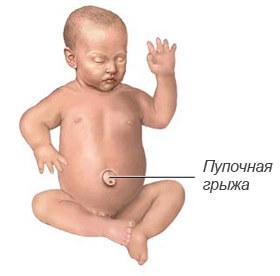 Пупочная грыжа у новорожденных и грудничков