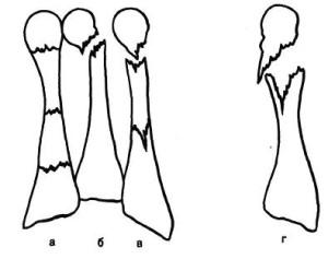Виды переломов плюсневых костей