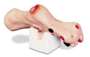 Пролежень на начальных стадиях на ноге