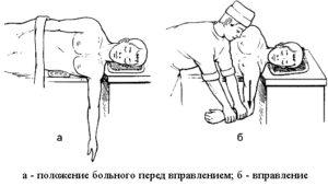Схема метод Джанелидзе