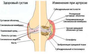 Изменение коленного сустава при артрозе