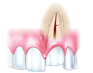 Вколоченный вывих зуба