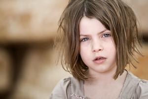 Бледность кожи может быть симптомом хронического остеомиелита у ребенка