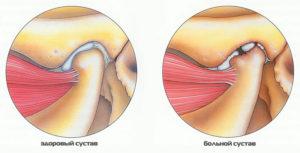 Здоровый и больной сустав челюсти