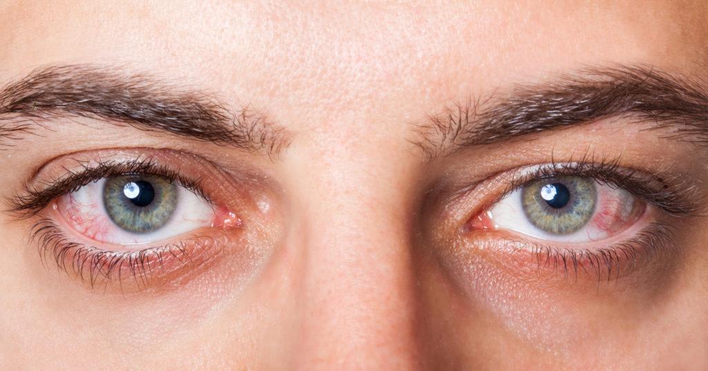 Как избавиться от красных глаз в домашних условиях?