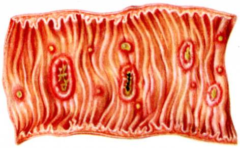 Проявления заражения кишечным амебиазом и особенности его лечения