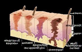 Начальная стадия рака кожи