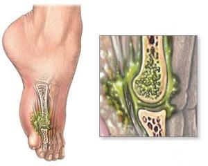 Возбудителями заболевания могут быть стафилококки, стрептококки и пневмококки
