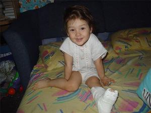 У детей такие переломы встречаются только, когда они учатся ходить