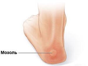 Как выглядит мозоль на ноге