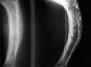 Пятнистый остеопороз