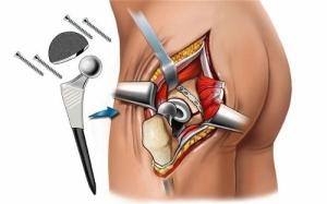 Если сразу после перелома не назначить эффективное лечение, последствия могут быть очень серьезными