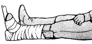 При закрытом переломе необходимо наложить шину