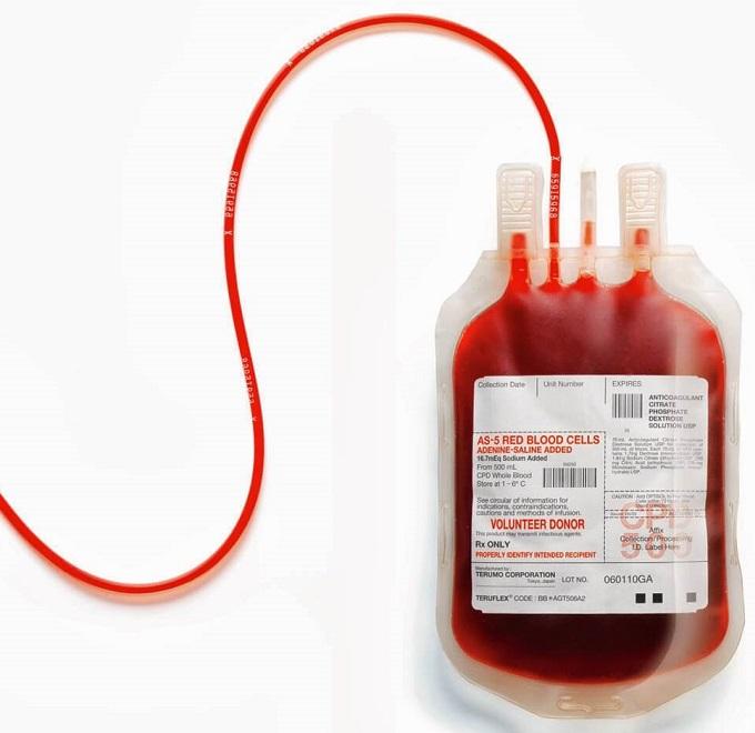 Переливание крови - способ заражения токсоплазмозом