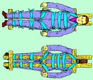 Для иммобилизации пострадавшего, нужно закрепить положение человека на твердой поверхности