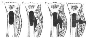 Стадии развития гематогенного остеомиелита