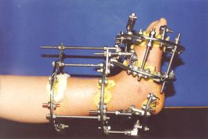 Компрессионный остеосинтез позволяет добиться заживления перелома при несросшихся отломках