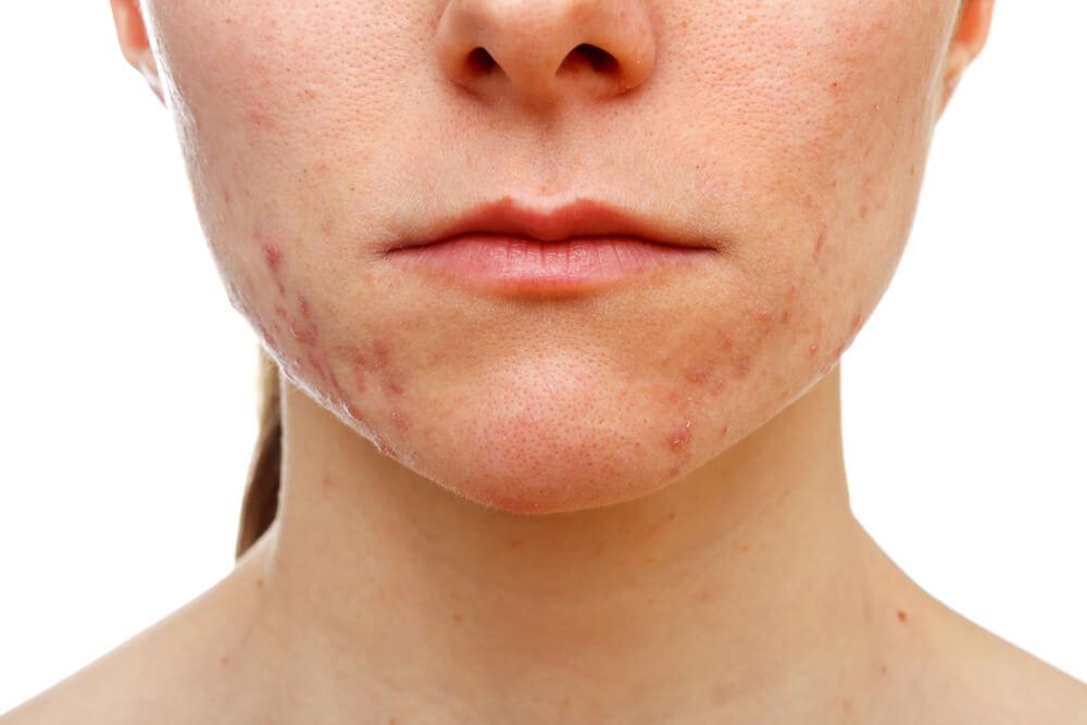 Подкожные прыщи на лице: причины возникновения и методы лечения