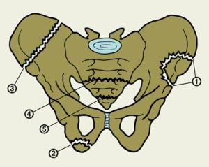 Краевые переломы тазовых костей