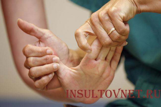 Сгибание кисти после инсульта