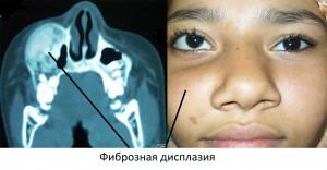Фиброзная дисплазия - это тяжелое последствие заболевания