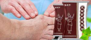 Рекомендации по использованию пластыря на косточку ноги