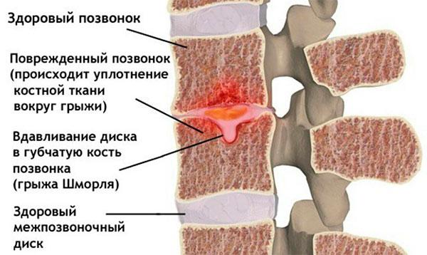 Методы диагностики и эффективное лечение грыжи Шморля