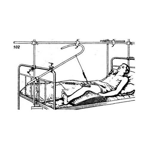 Скелетное вытяжение при переломе шейки бедра