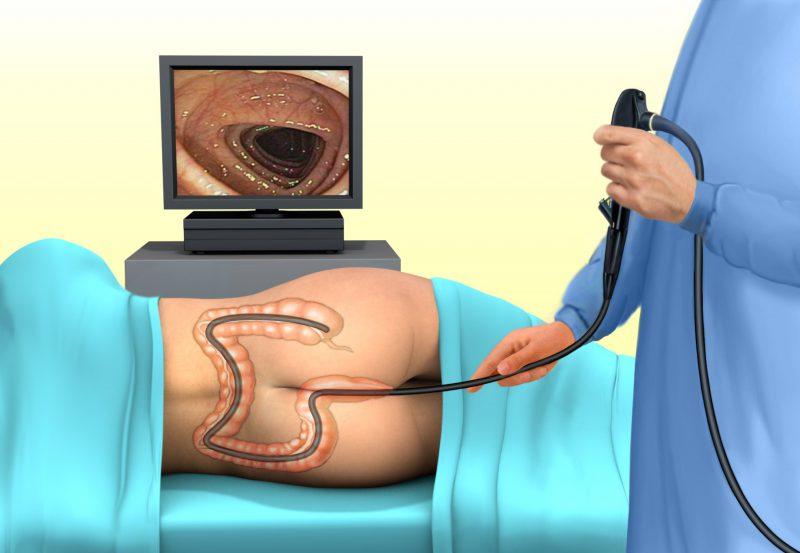 Ирригоскопия обследование кишечника