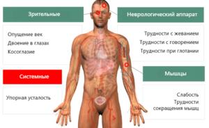 Симптомы миастении мышц
