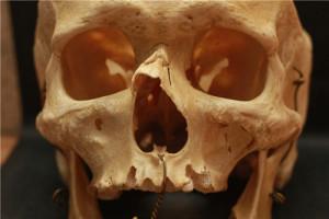 Носовая кость