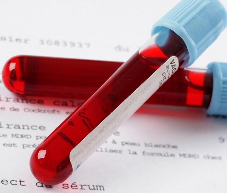 Анализ крови наличие антител igg к токсоплазм