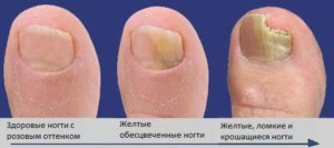 Стадии развития грибка на ноге