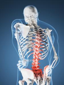 Болезнь Педжета, или деформирующая остеодистрофия