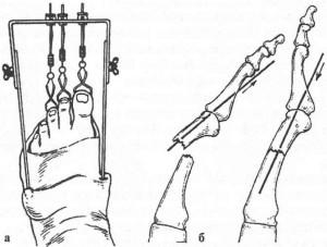 Скелетное вытяжение при переломах костей стопы