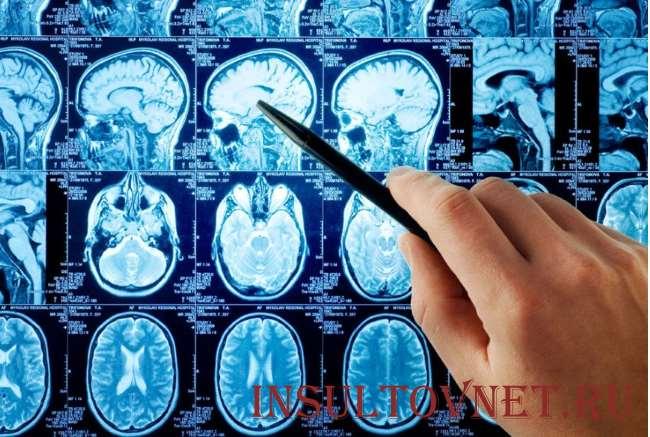 Геморрагический инсульт: что это