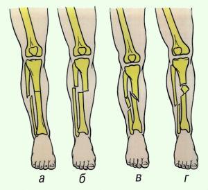 Перелом берцовых костей могут быть нескольких типов