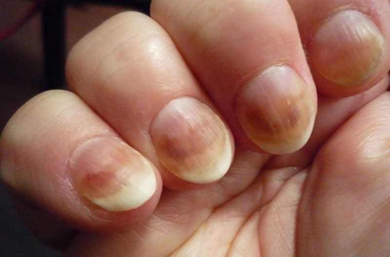 Проявление авитаминоза на руках и ногтях
