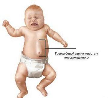 Отличия грыжи белой линии живота от пупочной у детей