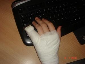 Работа за Пк с поломанным пальцем