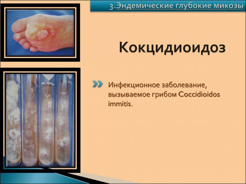 Кокцидиоидоз