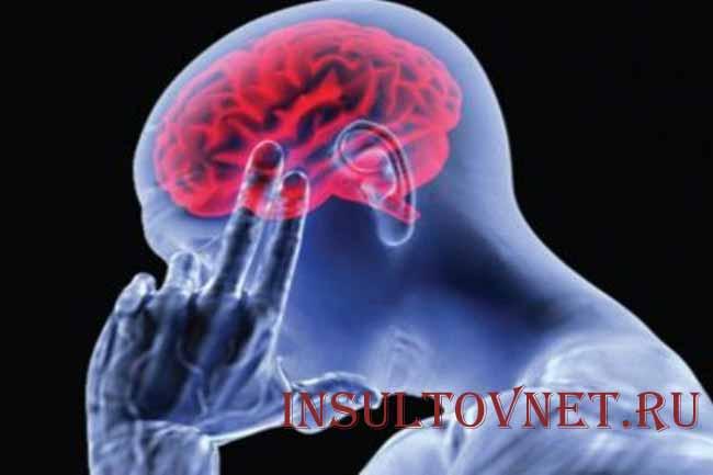 Недостаточное кровообращение головного мозга