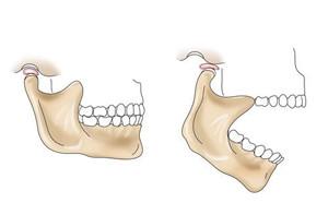 Сустав допускает движение челюсти в шести плоскостях