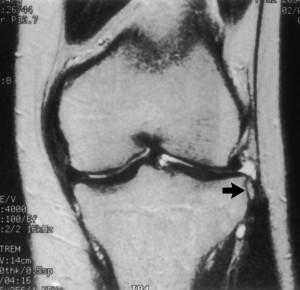 Ренгенограмма коленного сустава