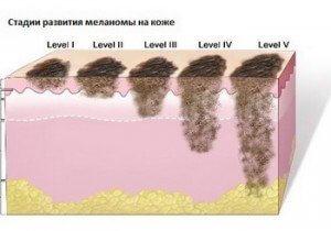 Диагностика меланомы кожи и стадии ее развития