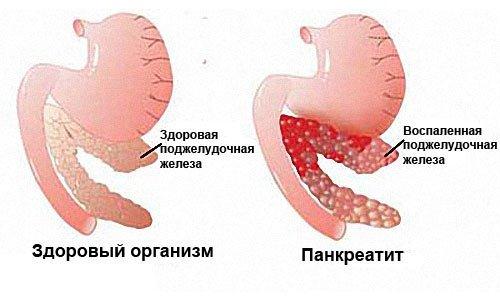 Изжога как симптом заболевания