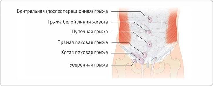 Грыжа кишечника - виды, причины развития, симптомы, способы лечения