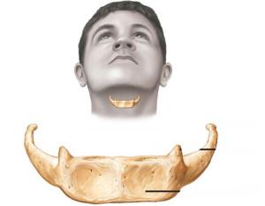 Подъязычная кость