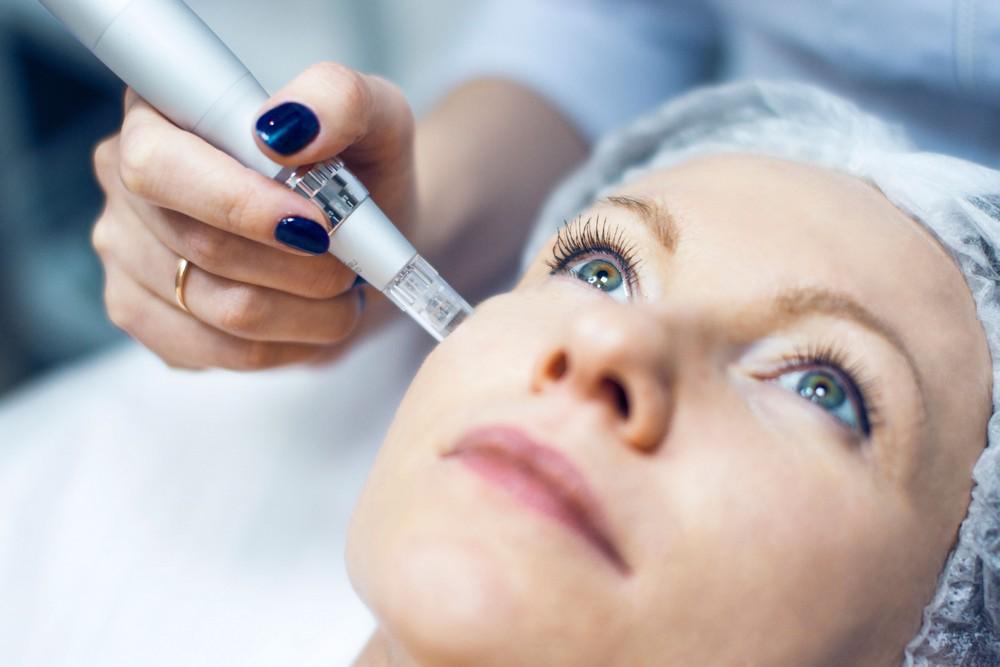 Фракционная мезотерапия кожи лица: становимся моложе с каждым сеансом