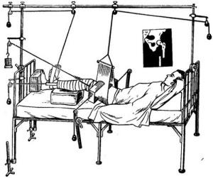 Скелетное вытяжение при переломе бедра